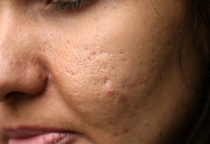 How Microdermabrasion Helps florida